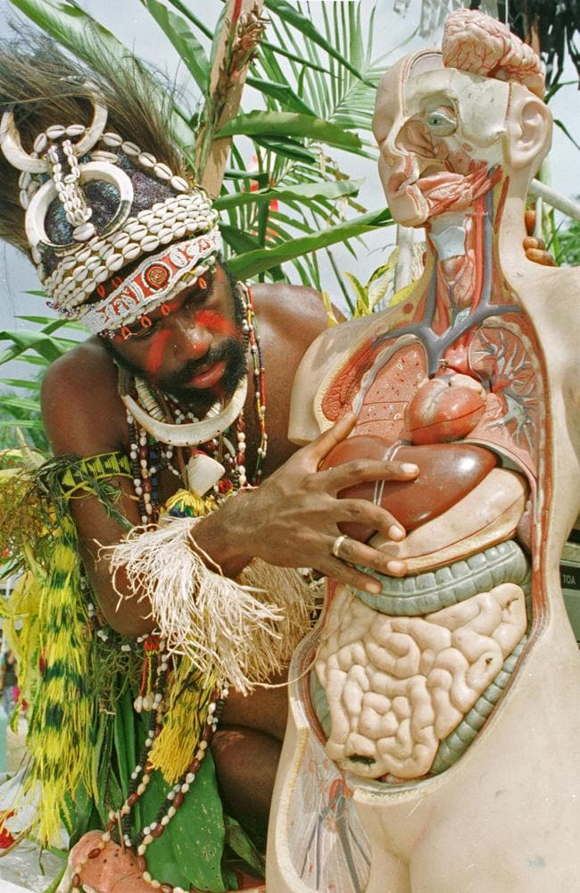 Doctors in PNG are trying to educate local people about the real cause of death, to try and avoid sorcery accusations. Picture: Torsten Blackwood / AFP