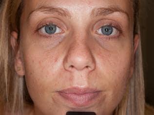 Natalie Walker and her acne.