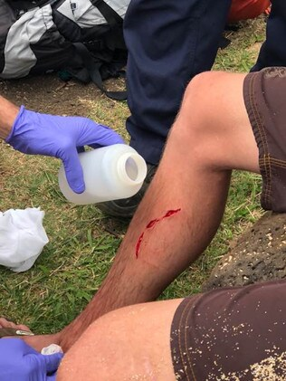 Cuts to the 20-year-old's leg after the shark attack. Picture: Facebook