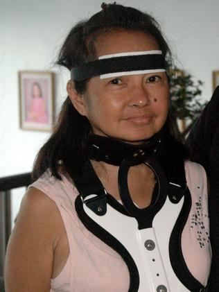 Former Philippine President Gloria Macapagal Arroyo, wearing a head and neck brace, in 2011. Picture: Supplied