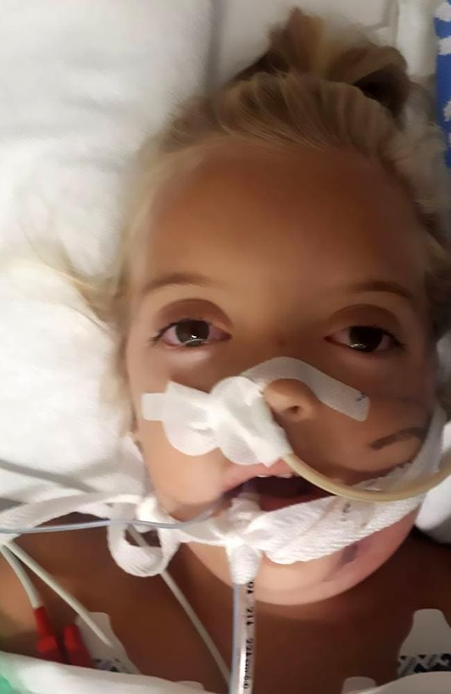 Mikayla-Sue after she was bitten by the cobra. Picture: Australscope