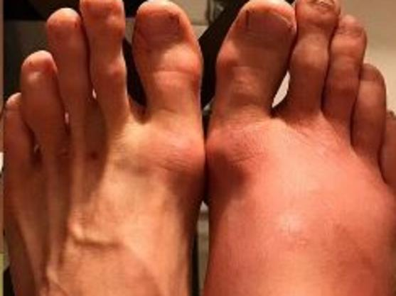 Patrick Cummins shared a gruesome photo of his feet.
