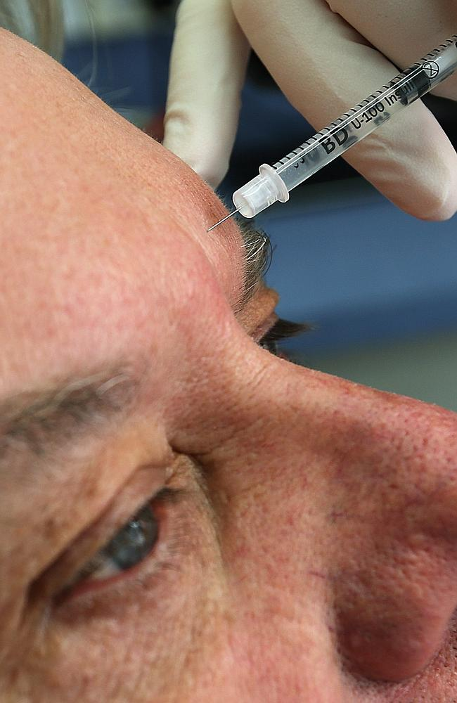 Botulinum toxin . Men are trying to reduce wrinkles as they want to feel younger and feel fresher.
