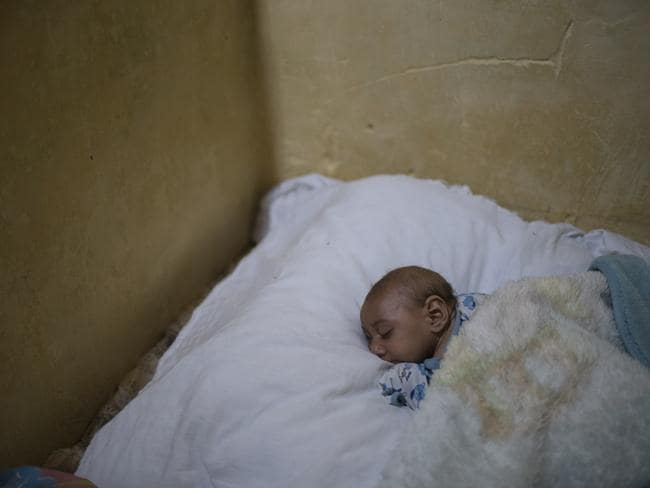 Brazilian baby Jose Wesley sleeps on his mother's bed in Bonito, Pernambuco state, Brazil. Jose Wesley has lost weight, from 7 to 5 kilograms, a huge drop for a baby who should be growing. Picture: Felipe Dana