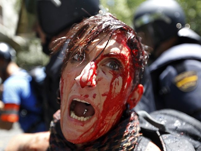 A woman covered in blood is surrounded by riot policemen during clashes between riot policemen and Spanish coal miners in Madrid.