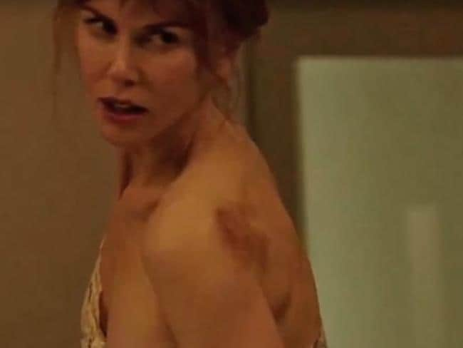 Nicole Kidman's character in Big Little Lies tried to hide the bruises her husband inflicted regularly. Picture: Foxtel