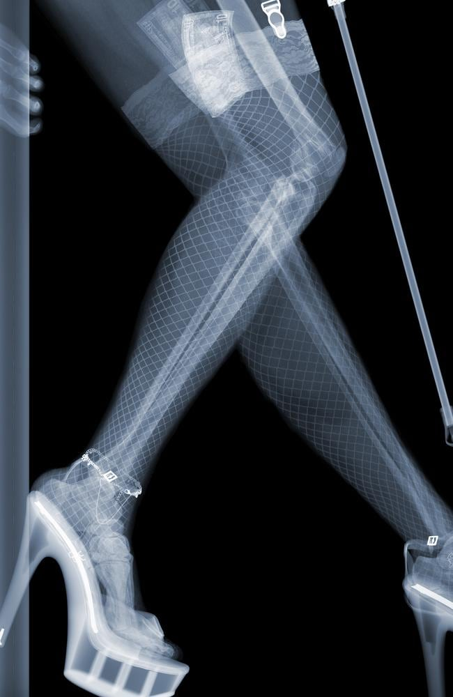 Voyeur ... Nick Veasey explores what can be seen through X-ray's in his latest collection. Picture: Splash