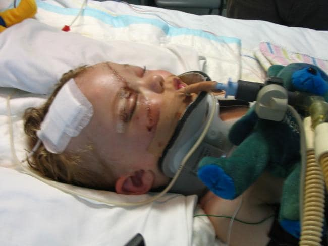 Layton in hospital after the accident. He suffered brain and body damage in the accident. Picture: Supplied