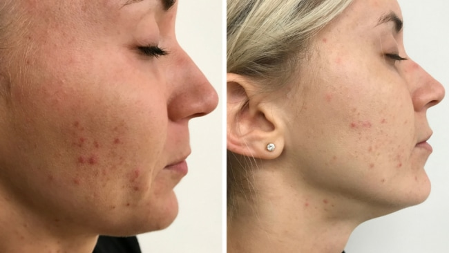 Emily's skin pre and post treatment. Image: Supplied