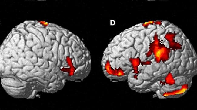 This scan reveals the brain activity on the left side during an out-of-body experience