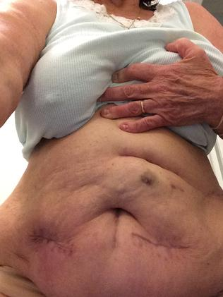 Pamela's stomach has been left riddled with scars following the botched colonic procedure.