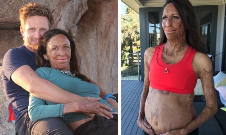 Turia Pitt revealed her most hated part of pregnancy and we SO relate!