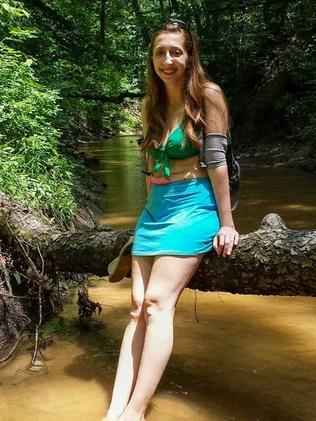 Alyssa wears her ostomy bag comfortably with a skirt.