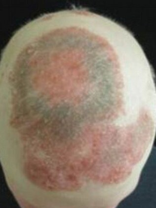 Before treatment ... The man has not had hair for seven years and the psoriasis is highly visible. Picture: Yale University