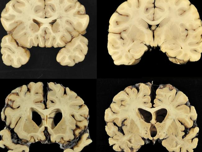 This combination of photos provided by Boston University shows sections from a normal brain, top, and from the brain of former University of Texas football player Greg Ploetz, bottom, in stage IV of chronic traumatic encephalopathy. (Dr. Ann McKee/BU via AP)