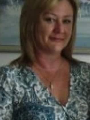 Before surgery. .. Deborah Scheithe had cosmetic surgery.
