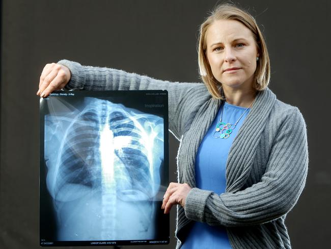 Clare Lindop with an x-ray of her chest, showing the injuries she received after she fell at the Adelaide Cup. Picture: Calum Robertson