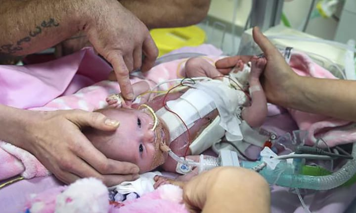 Miracle baby with life-threatening defect is first ever to survive surgery