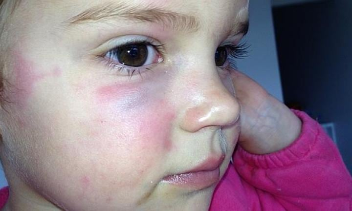 Girl allegedly assaulted by older child at gym creche