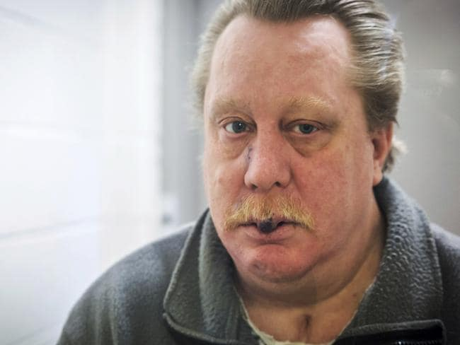 Russell Bucklew is scheduled to die by injection tomorrow, and his lawyer says the execution could be 'gruesome and painful' because of his rare medical condition. Picture: Jeremy Weis Photography via AP