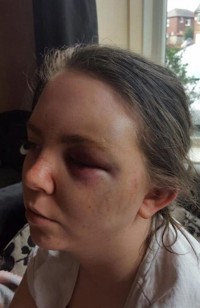 Paige Hegarty, 21, suffered fractures to her cheekbone and eye socket when Elliot Beckwith repeatedly banged her head on the floor. Picture: MEN Media/Mirrorpix/australscope