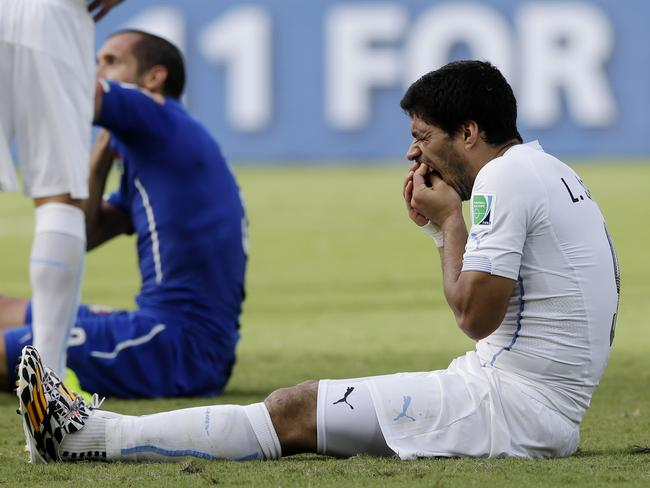 Uruguay's Luis Suarez holds his teeth after an apparent bite of Italy's Giorgio Chiellini in the group D World Cup match.