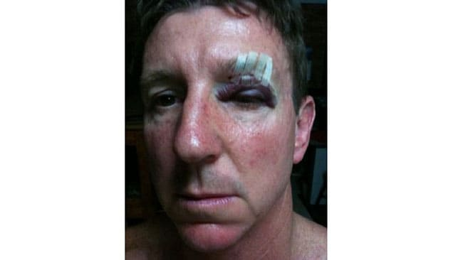 NT Minister Willem Westra van Holthe came off second best after a bar fight over his wife's breasts. Picture: NT News