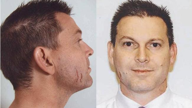 A photo of the scratches on Baden-Clay's face which the prosecution successfully argued were from Allison's fingernails.