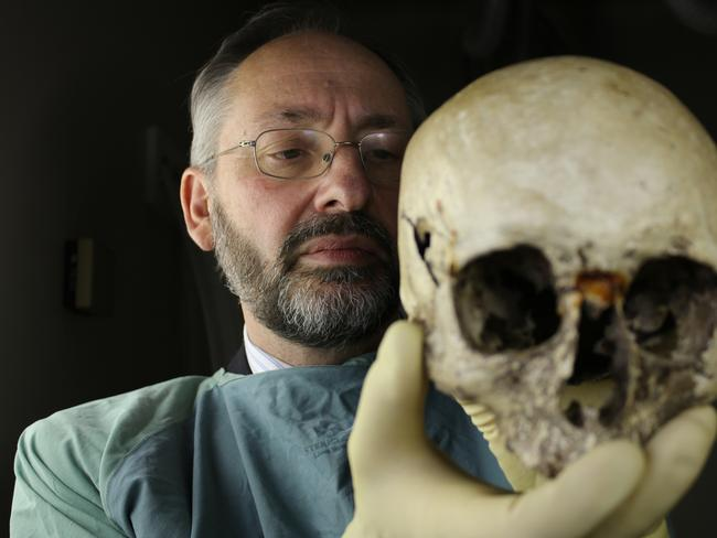 Professor David Ranson examines the skull of Ned Kelly in an image from the SBS TV documentary 'Ned's Head'.