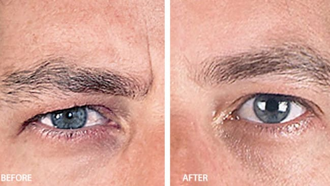 Brow how ... keeping the eyebrows natural is key to proper Botox application, according to experts from Laser Clinics Australia. Picture: Supplied