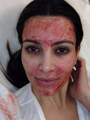 Kim Kardashian after a facial made out of her OWN BLOOD. Photo: Twitter