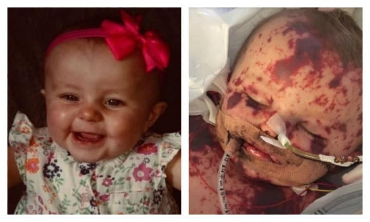 Baby Kia has the worst case of meningitis doctors have seen in 25 years