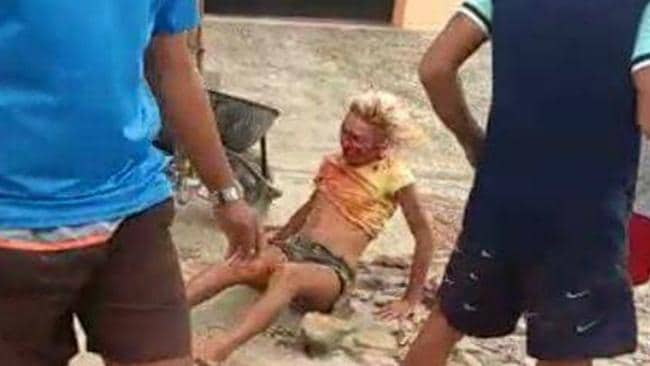 Dandara dos Santos lies, bloodied, in the street. Picture: Viral Press