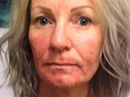 Niki Richardson, 46, of Mornington. Niki is angry at outcome of laser treatment at former Mornington clinic Lumps & Bumps. Clinic has now closed and relocated to Canberra. This pic shows her on Day 39. STORY IS BEING LEGALLED. DO NOT NAME CLINIC WITHOUT CLEARANCE. Journo Allison Harding 0425814152