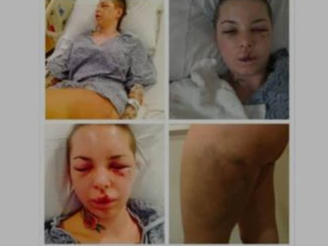 These photographs of Ms Mackinday's injuries, posted to her Instagram account, shocked the world