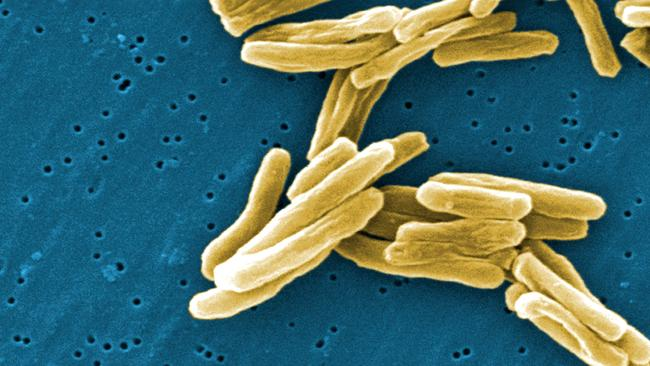 This image shows the Mycobacterium tuberculosis (TB) bacteria in a high magnification. Picture: AP