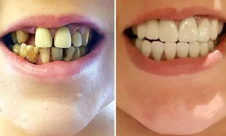 Woman elated with transformation of 'rotten teeth' into sparkling new ones