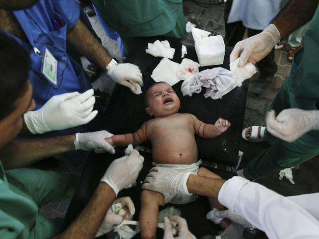 Palestinian medics treat a baby wounded in an missile strike in the southern Gaza strip. AP Photo/Eyad Baba