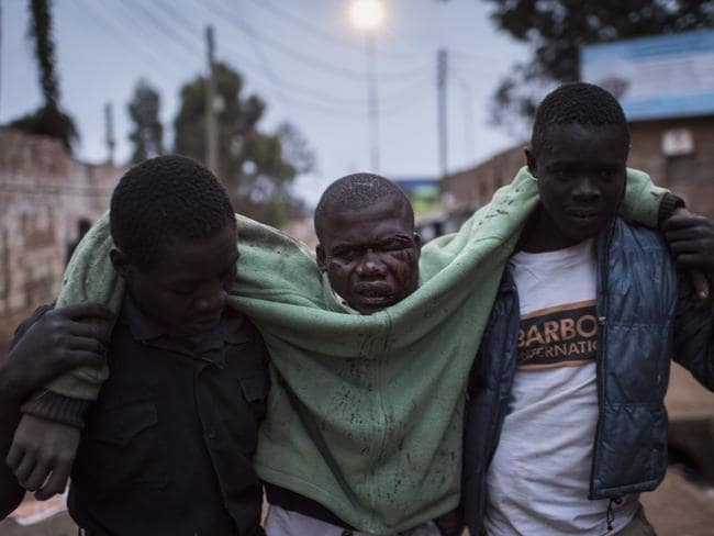 A man who was badly beaten is carried in the Kibera slum. Picture: Getty Images