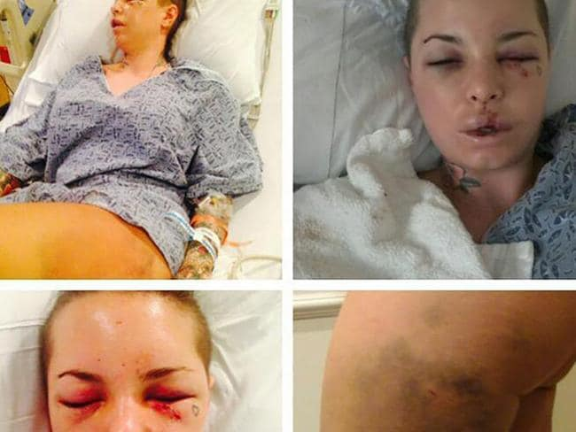 Christy Mack Mackinday after the alleged attack. Picture: Instagram