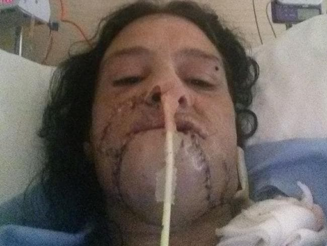 Surgeons had to reattached Ashley Bunn's chin. Picture: Facebook