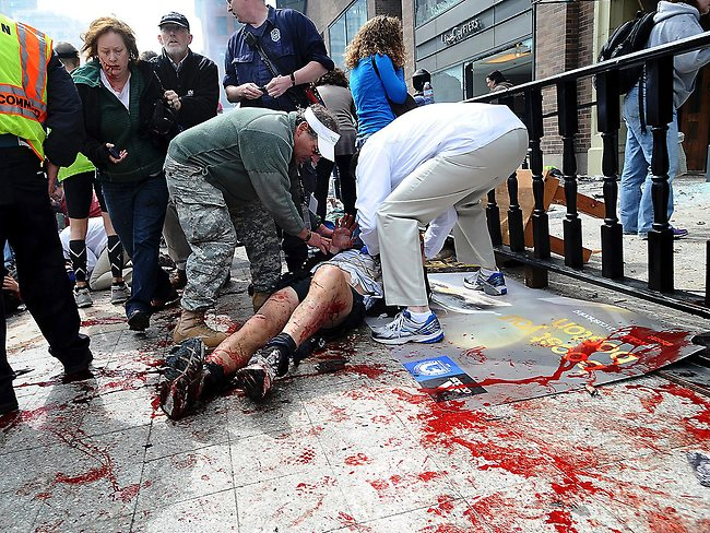 An injured person is helped on the sidewalk. Picture: AP