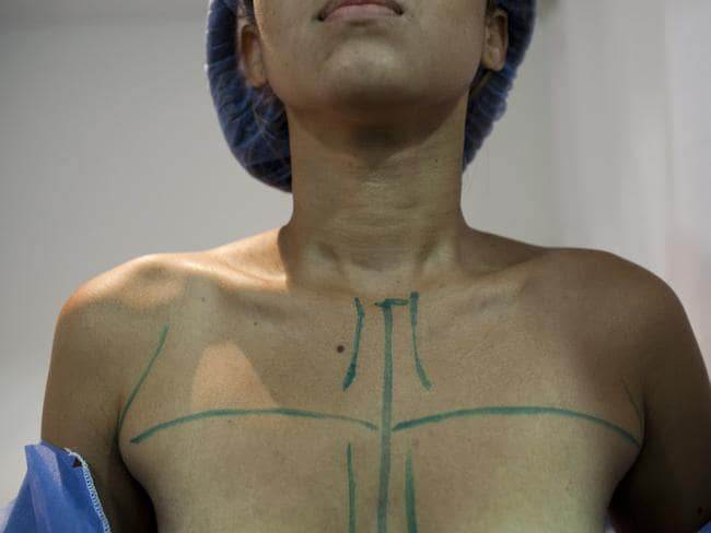 Patient prepped for breast augmentation ... Doctors in Caracas says a shortage of breast implants cuts to the psyche of the image-conscious Venezuelan woman. Picture: Ariana Cubillos