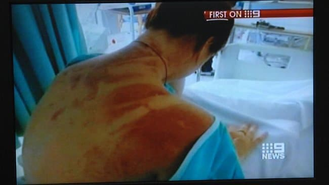 Erin Langworthy's injuires after her horror 111-metre fall, when her cord snapped during a bungee jump. Picture: Channel 9