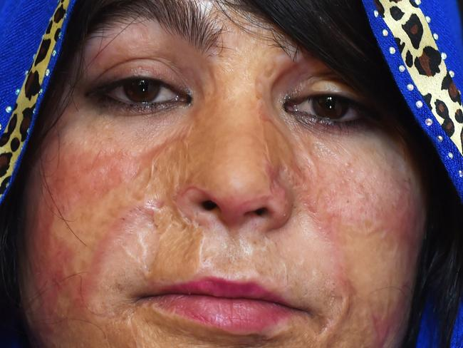 Mumtaz, 20, has been hiding away for four years after she was attacked. Picture: Shah Marai / AFP.