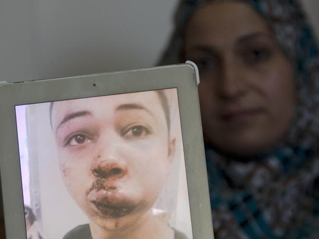 Beating ... The mother of Tariq Abu Khder shows a picture of her son she took of him at the hospital after he was assaulted by Israeli border police. Picture: Ahmad Gharabli