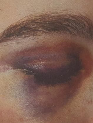 Bruising and facial injuries inflicted on torture victim. Picture: SA Police