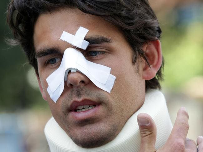 Multiple injuries ... Thomas Drouet after he was headbutted by John Tomic. Picture: Ella Pellegrini