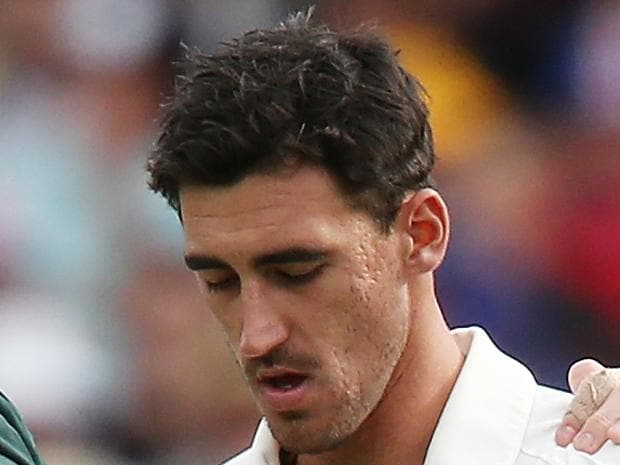 Starc injury sours Aussie success