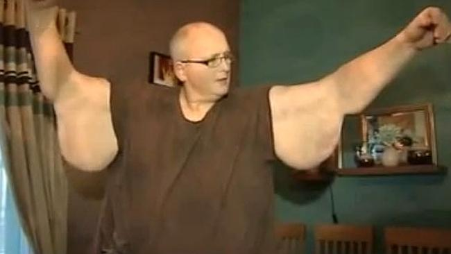 Paul Mason was on TV pleading for an operation to get rid of excess skin left over from his weight loss. Picture: YOUTUBE